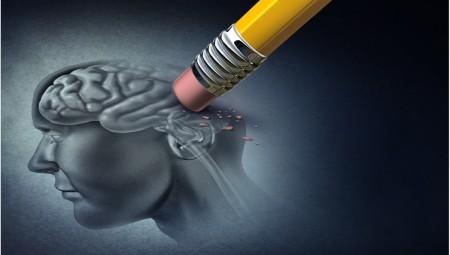 دراسة: تقنية علاجية جديدة لمرض الزهايمر