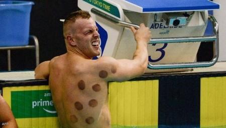 الحجامة تثير الانتباه في أولمبياد طوكيو